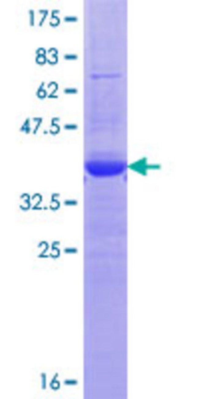 Abnova Human KCNH7 Partial ORF (NP_775185.1, 132 a.a. - 230 a.a.) Recombinant