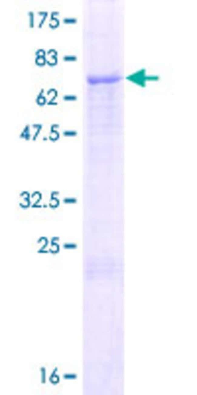 Abnova™Human ZSWIM1 Full-length ORF (NP_542170.3, 1 a.a. - 485 a.a.) Recombinant Protein with GST-tag at N-terminal 10μg Abnova™Human ZSWIM1 Full-length ORF (NP_542170.3, 1 a.a. - 485 a.a.) Recombinant Protein with GST-tag at N-terminal