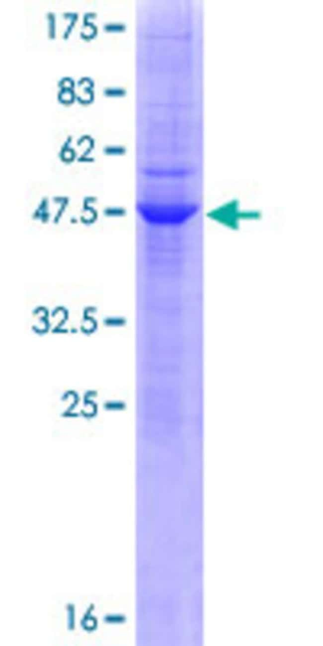 Abnova™Human CEACAM21 Full-length ORF (AAH12001.1, 1 a.a. - 191 a.a.) Recombinant Protein with GST-tag at N-terminal 10μg Abnova™Human CEACAM21 Full-length ORF (AAH12001.1, 1 a.a. - 191 a.a.) Recombinant Protein with GST-tag at N-terminal