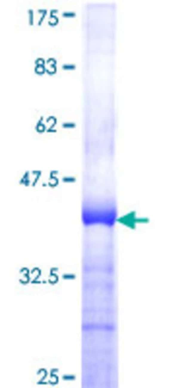 Abnova™Human ZNF622 Partial ORF (NP_219482, 1 a.a. - 100 a.a.) Recombinant Protein with GST-tag at N-terminal 10μg Abnova™Human ZNF622 Partial ORF (NP_219482, 1 a.a. - 100 a.a.) Recombinant Protein with GST-tag at N-terminal