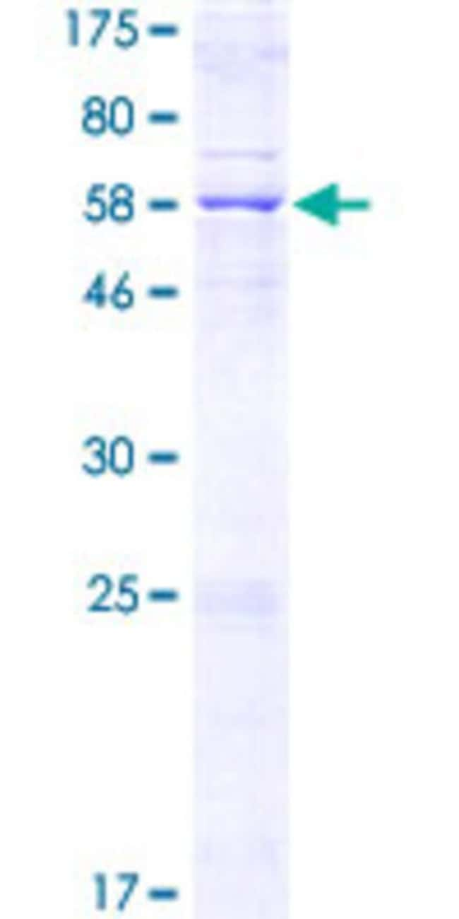 Abnova™Human MCU Full-length ORF (NP_612366.1, 1 a.a. - 351 a.a.) Recombinant Protein with GST-tag at N-terminal 25μg Abnova™Human MCU Full-length ORF (NP_612366.1, 1 a.a. - 351 a.a.) Recombinant Protein with GST-tag at N-terminal