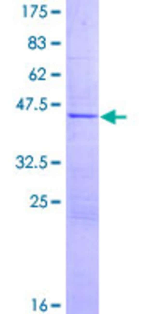 Abnova™Human CG018 Full-length ORF (NP_001073159.1, 1 a.a. - 173 a.a.) Recombinant Protein with GST-tag at N-terminal 10μg Abnova™Human CG018 Full-length ORF (NP_001073159.1, 1 a.a. - 173 a.a.) Recombinant Protein with GST-tag at N-terminal
