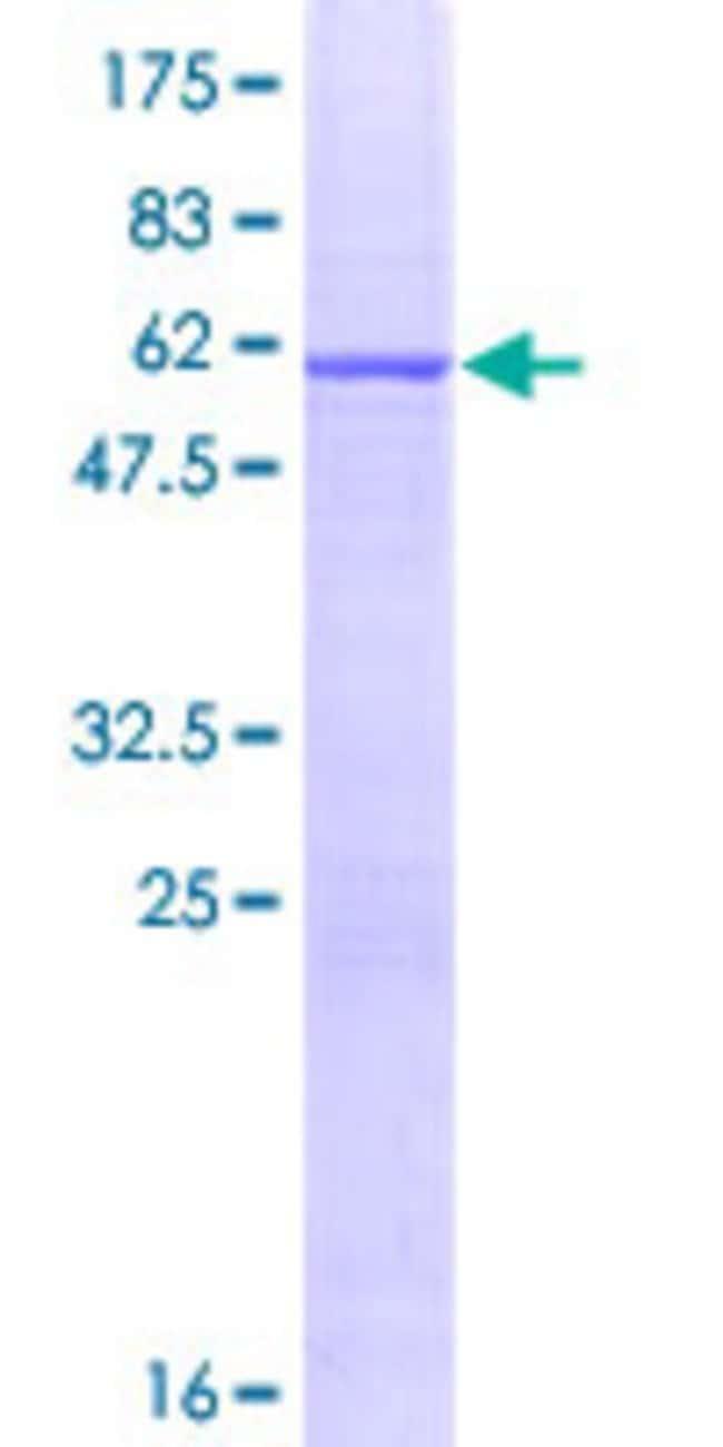 Abnova Human IL33 Full-length ORF (NP_254274.1, 1 a.a. - 270 a.a.) Recombinant