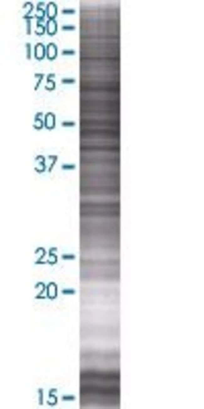Abnova ZNF697 293T Cell Transient Overexpression Lysate (Denatured) 100µL:Life