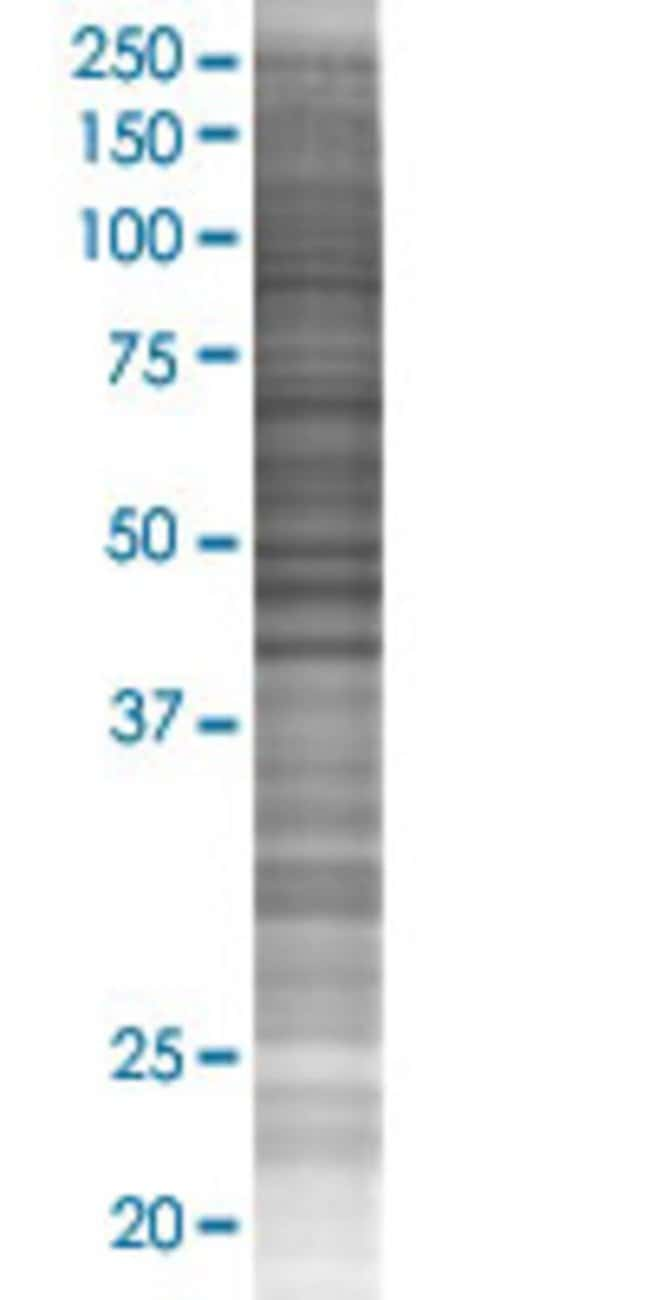 AbnovaADCK2 293T Cell Transient Overexpression Lysate (Denatured) 100μL:Protein