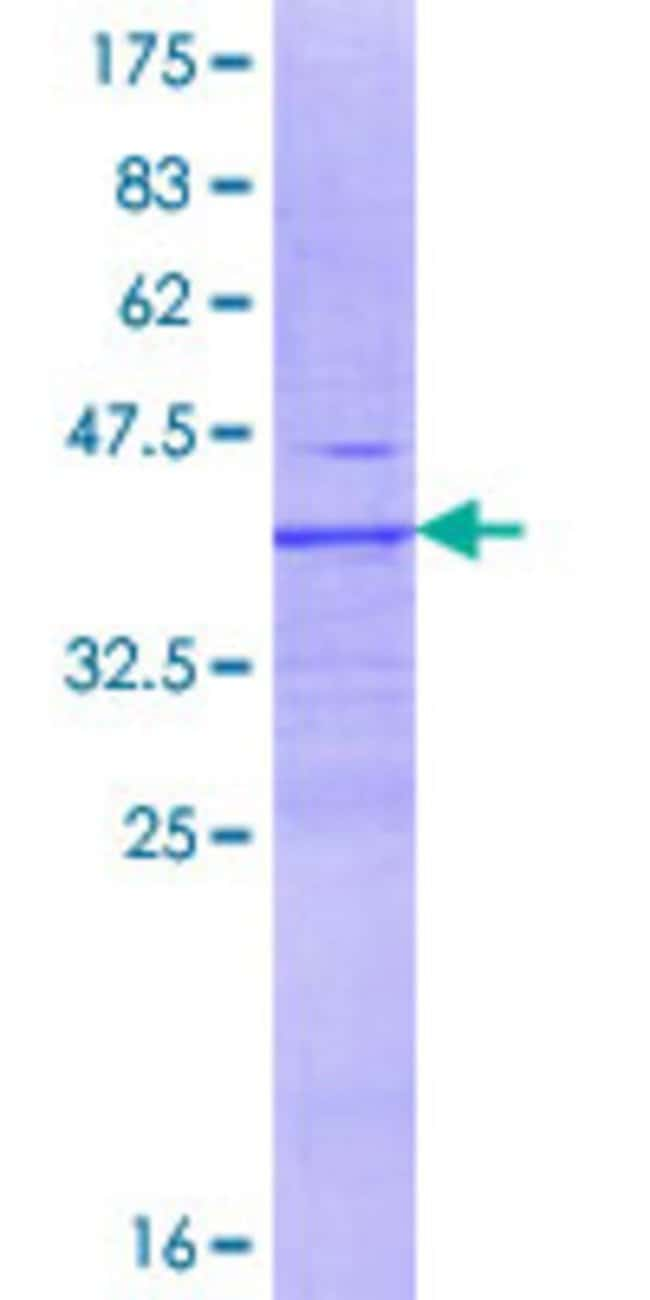 Abnova™ Human DPP9 Partial ORF (NP_631898.2, 24 a.a. - 119 a.a.) Recombinant Protein with GST-tag at N-terminal 25μg Abnova™ Human DPP9 Partial ORF (NP_631898.2, 24 a.a. - 119 a.a.) Recombinant Protein with GST-tag at N-terminal
