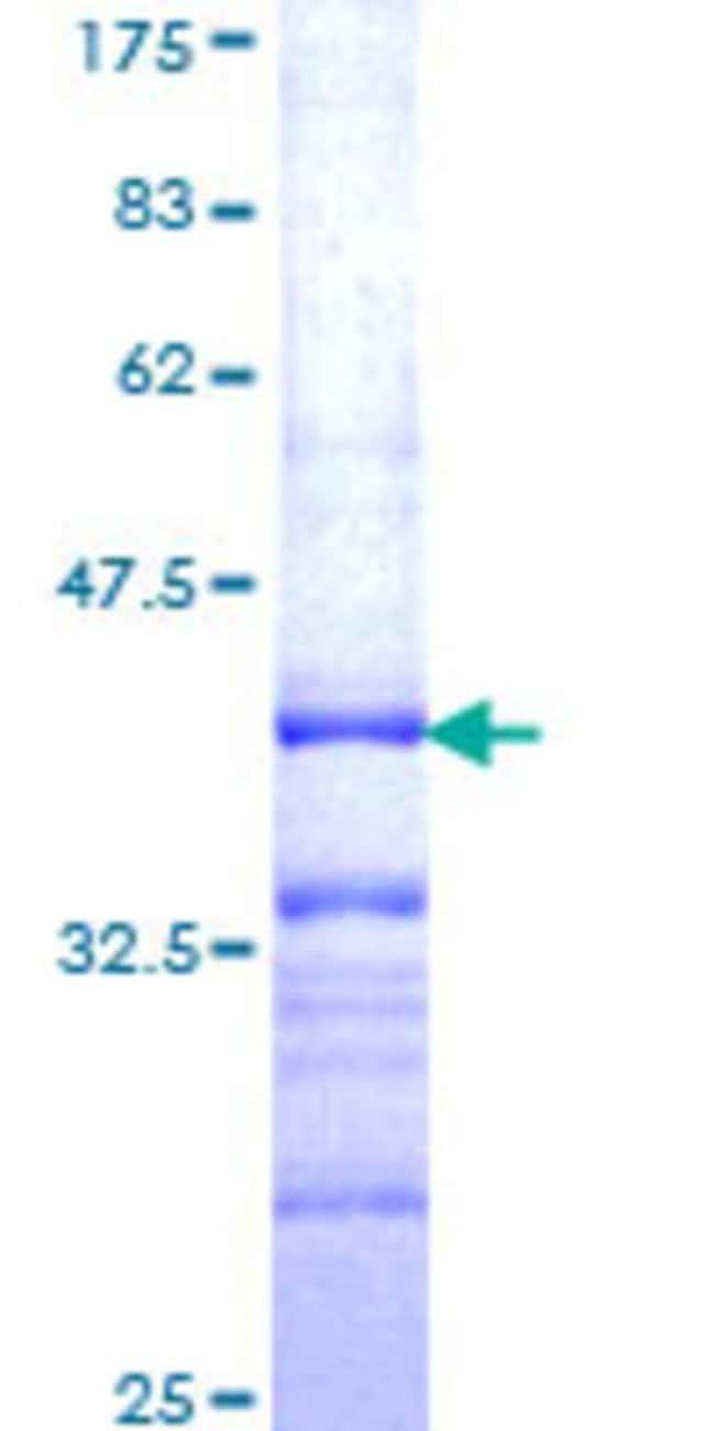 Abnova™Human DKFZp434B1231 Partial ORF (NP_840059, 720 a.a. - 818 a.a.) Recombinant Protein with GST-tag at N-terminal 25μg Abnova™Human DKFZp434B1231 Partial ORF (NP_840059, 720 a.a. - 818 a.a.) Recombinant Protein with GST-tag at N-terminal