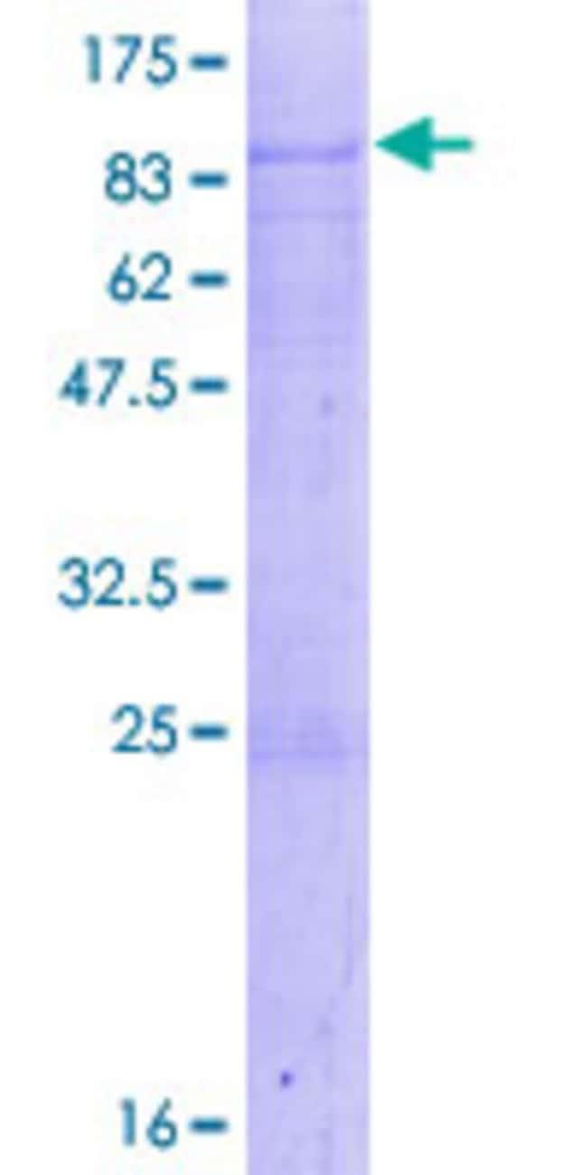 AbnovaHuman ACBD5 Full-length ORF (NP_663736.1, 1 a.a. - 490 a.a.) Recombinant