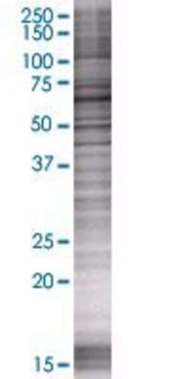 AbnovaACBD5 293T Cell Transient Overexpression Lysate (Denatured) 100μL:Protein
