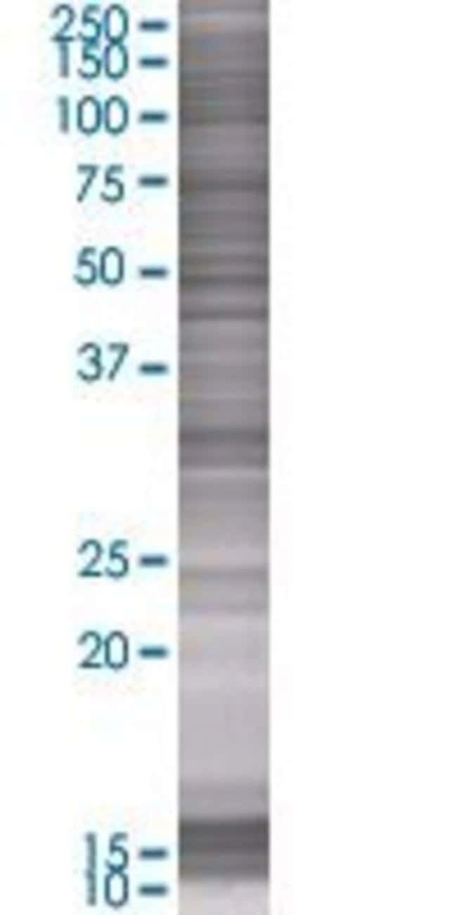 AbnovaACY3 293T Cell Transient Overexpression Lysate (Denatured) 100μL:Protein