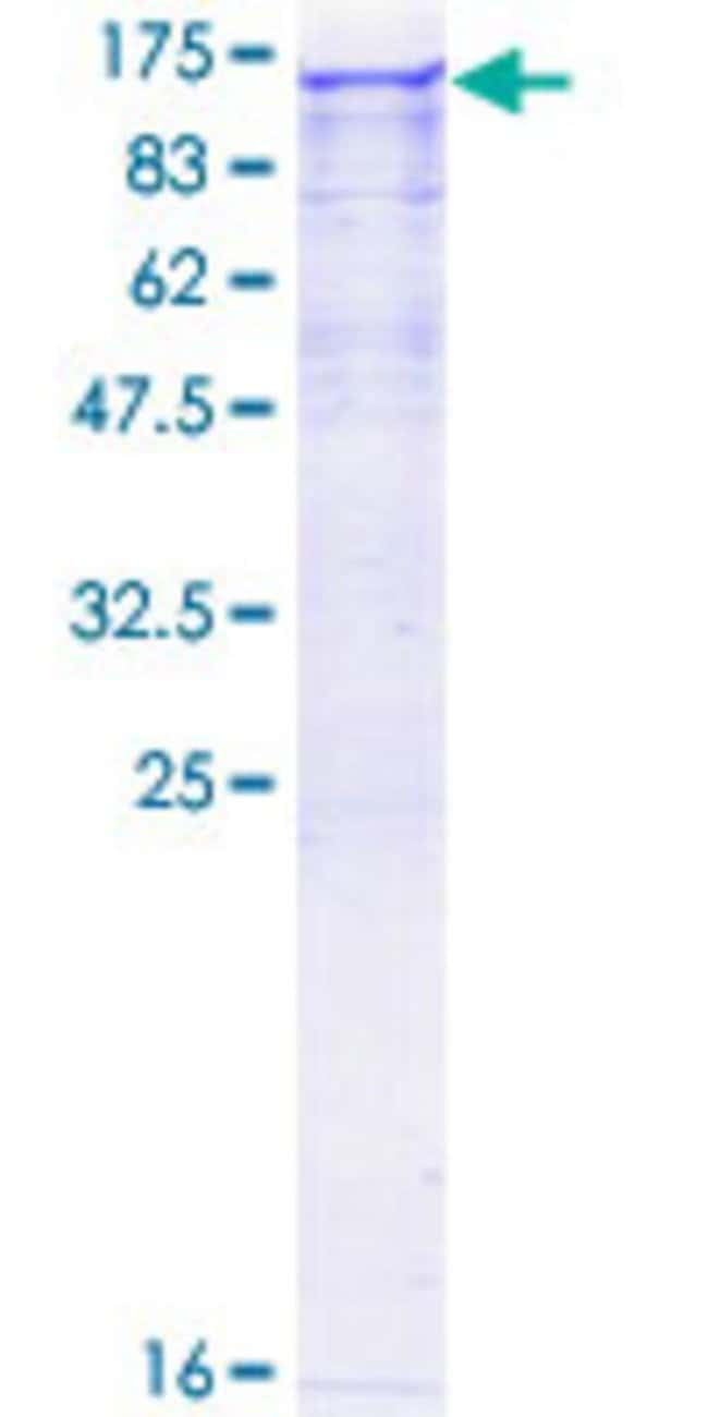 Abnova™Human NEK9 Full-length ORF (AAH93881.1, 1 a.a. - 979 a.a.) Recombinant Protein with GST-tag at N-terminal 25μg Abnova™Human NEK9 Full-length ORF (AAH93881.1, 1 a.a. - 979 a.a.) Recombinant Protein with GST-tag at N-terminal