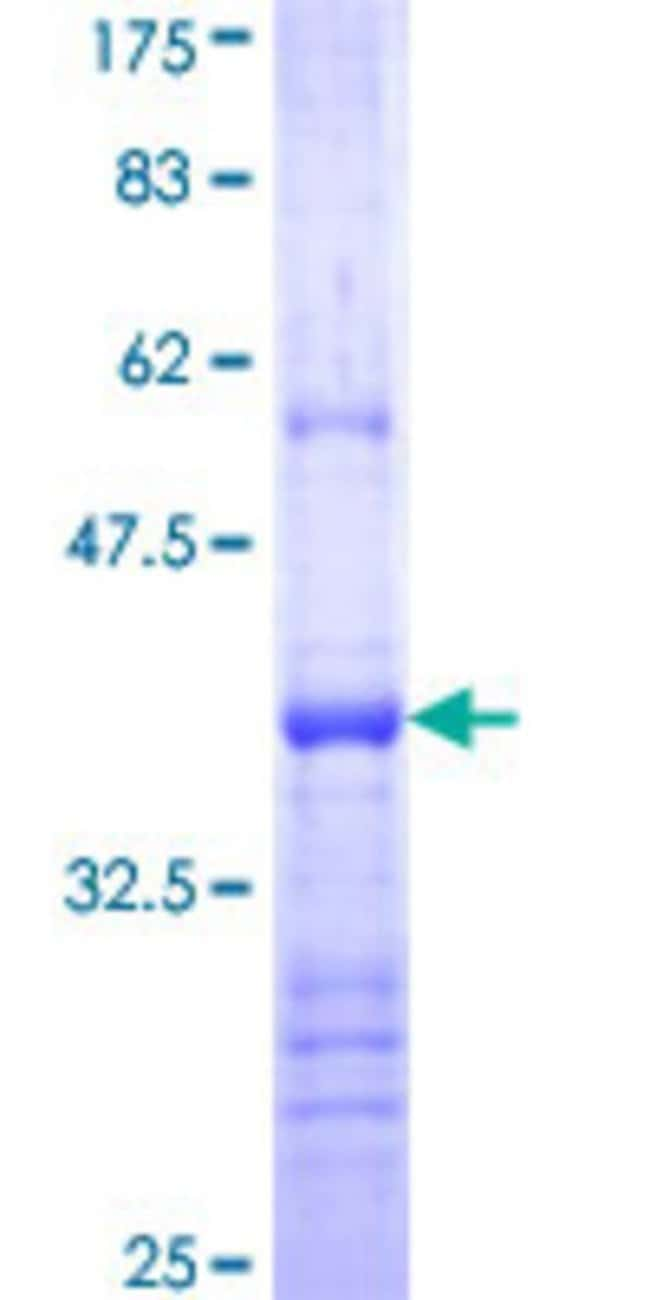 Abnova™Human PCDH21 Partial ORF (NP_149091, 113 a.a. - 211 a.a.) Recombinant Protein with GST-tag at N-terminal 10μg Abnova™Human PCDH21 Partial ORF (NP_149091, 113 a.a. - 211 a.a.) Recombinant Protein with GST-tag at N-terminal