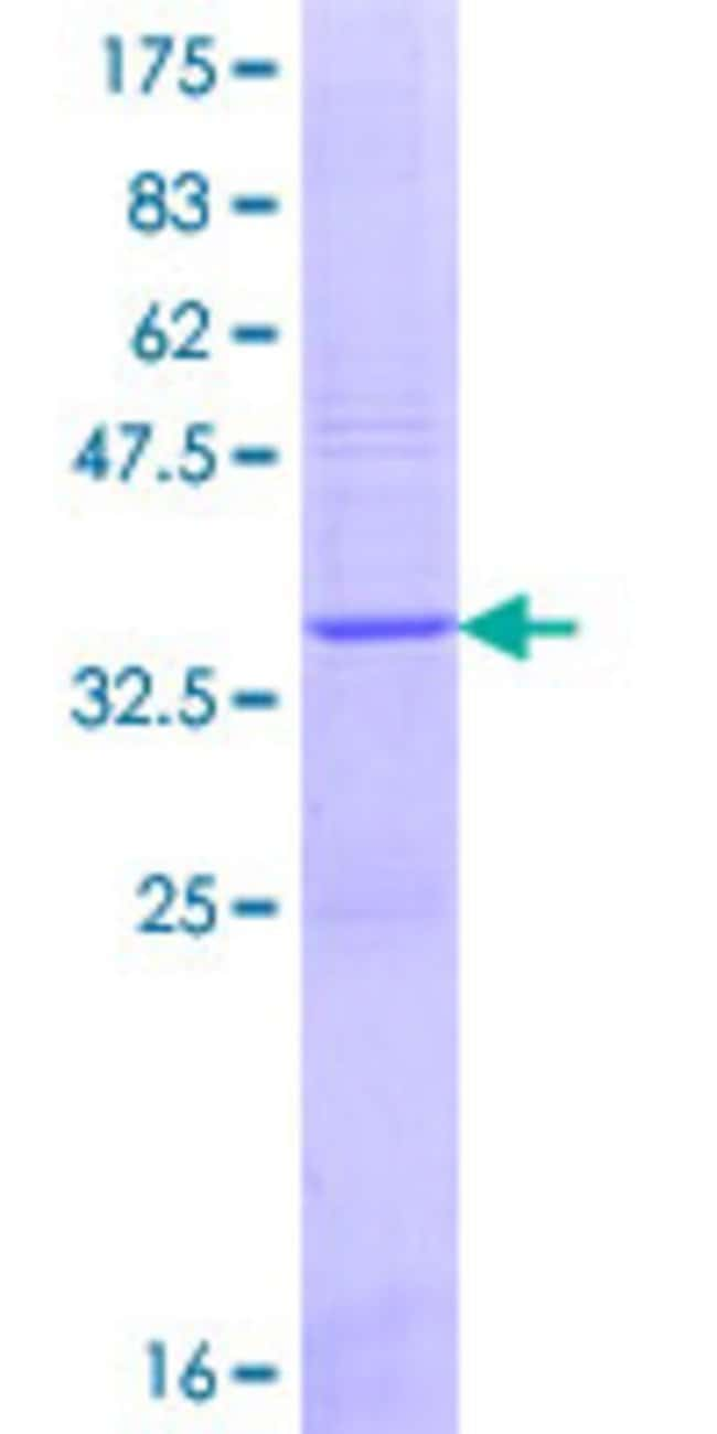Abnova™Human CAPN13 Partial ORF (NP_653176.2, 570 a.a. - 668 a.a.) Recombinant Protein with GST-tag at N-terminal 25μg Abnova™Human CAPN13 Partial ORF (NP_653176.2, 570 a.a. - 668 a.a.) Recombinant Protein with GST-tag at N-terminal