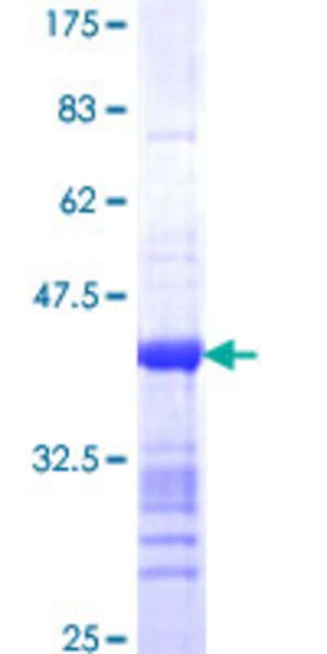 Abnova™Human MRRF Partial ORF (NP_620132, 163 a.a. - 262 a.a.) Recombinant Protein with GST-tag at N-terminal 10μg Abnova™Human MRRF Partial ORF (NP_620132, 163 a.a. - 262 a.a.) Recombinant Protein with GST-tag at N-terminal