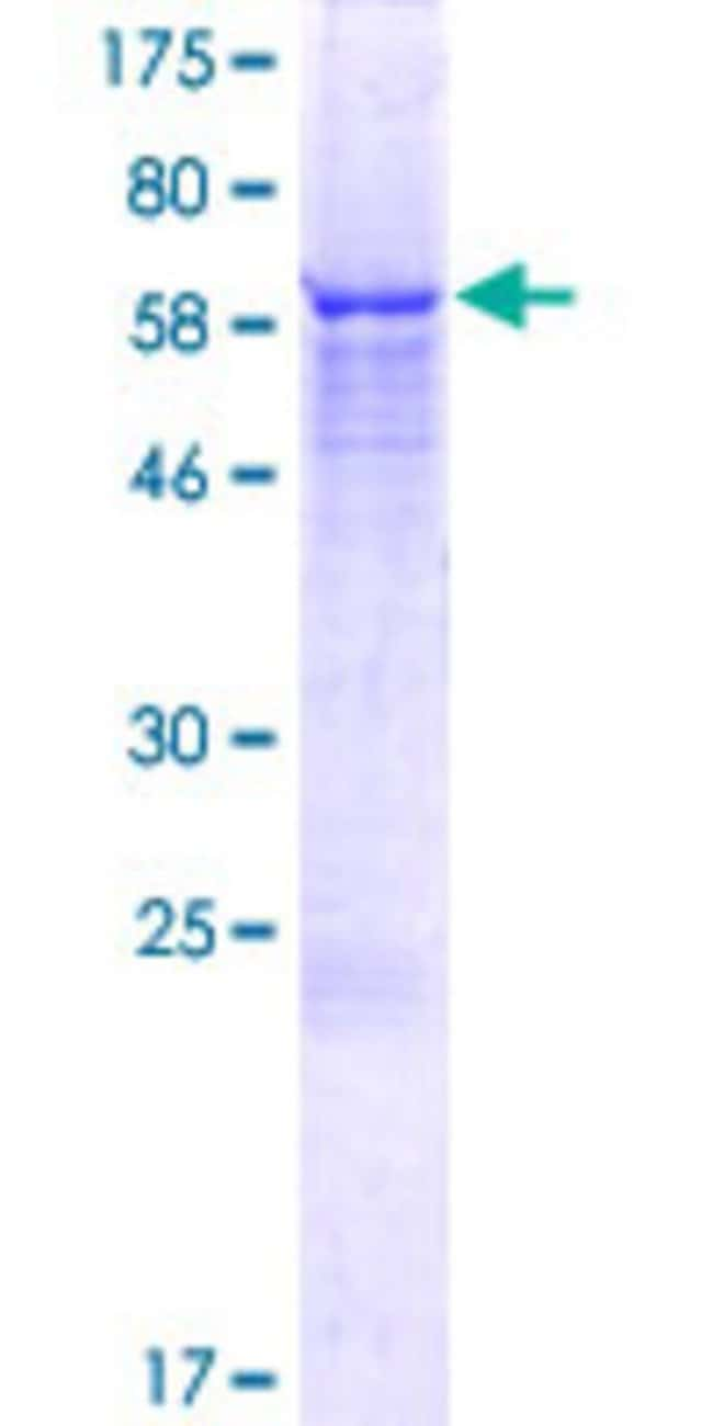 Abnova™Human ZNF764 Full-length ORF (NP_219363.1, 1 a.a. - 408 a.a.) Recombinant Protein with GST-tag at N-terminal 10μg Abnova™Human ZNF764 Full-length ORF (NP_219363.1, 1 a.a. - 408 a.a.) Recombinant Protein with GST-tag at N-terminal