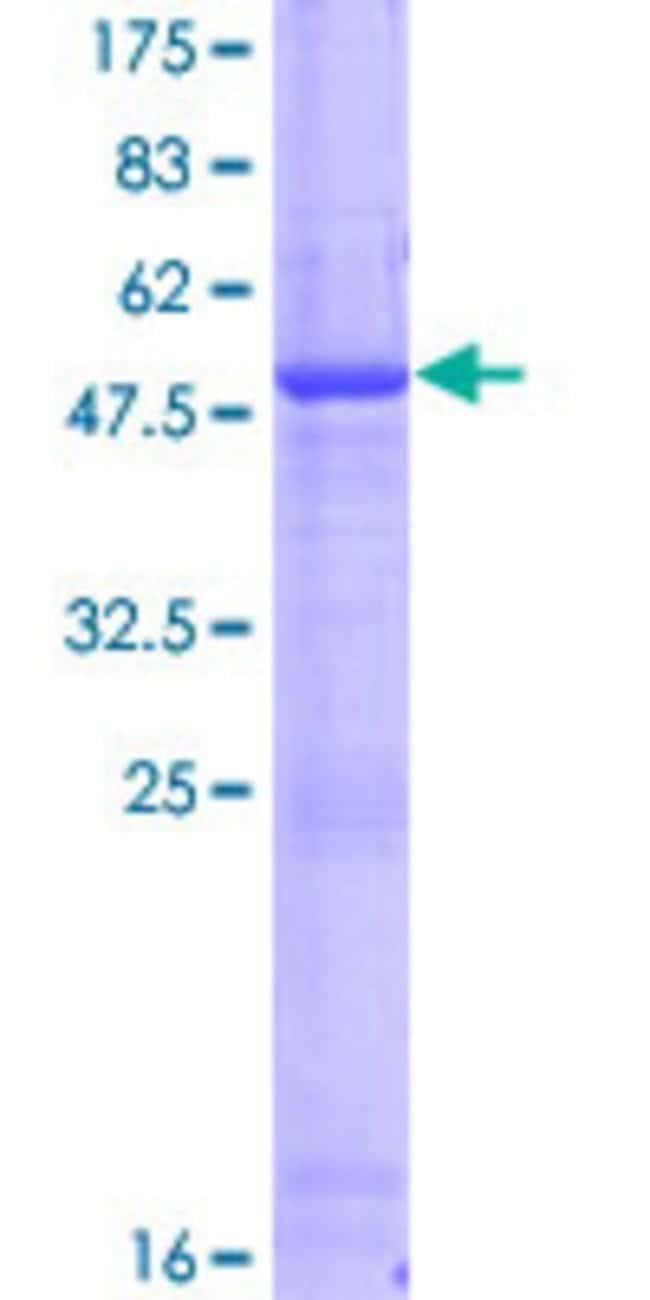 Abnova Human DTD1 Full-length ORF (NP_543010.3, 1 a.a. - 209 a.a.) Recombinant