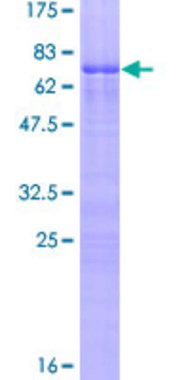 Abnova™Human ZFP276 Full-length ORF (AAI11409.1, 1 a.a. - 373 a.a.) Recombinant Protein with GST-tag at N-terminal 25μg Abnova™Human ZFP276 Full-length ORF (AAI11409.1, 1 a.a. - 373 a.a.) Recombinant Protein with GST-tag at N-terminal