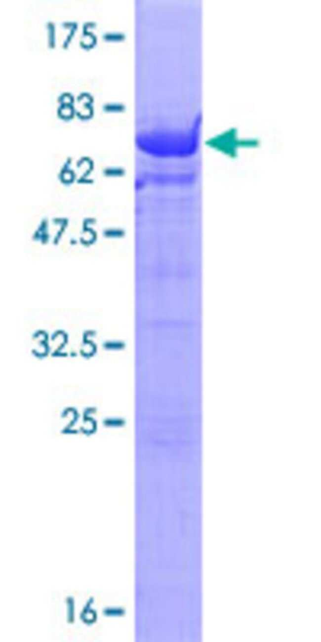 Abnova™Human UBE2Q2 Full-length ORF (NP_775740.1, 1 a.a. - 375 a.a.) Recombinant Protein with GST-tag at N-terminal 25μg Abnova™Human UBE2Q2 Full-length ORF (NP_775740.1, 1 a.a. - 375 a.a.) Recombinant Protein with GST-tag at N-terminal