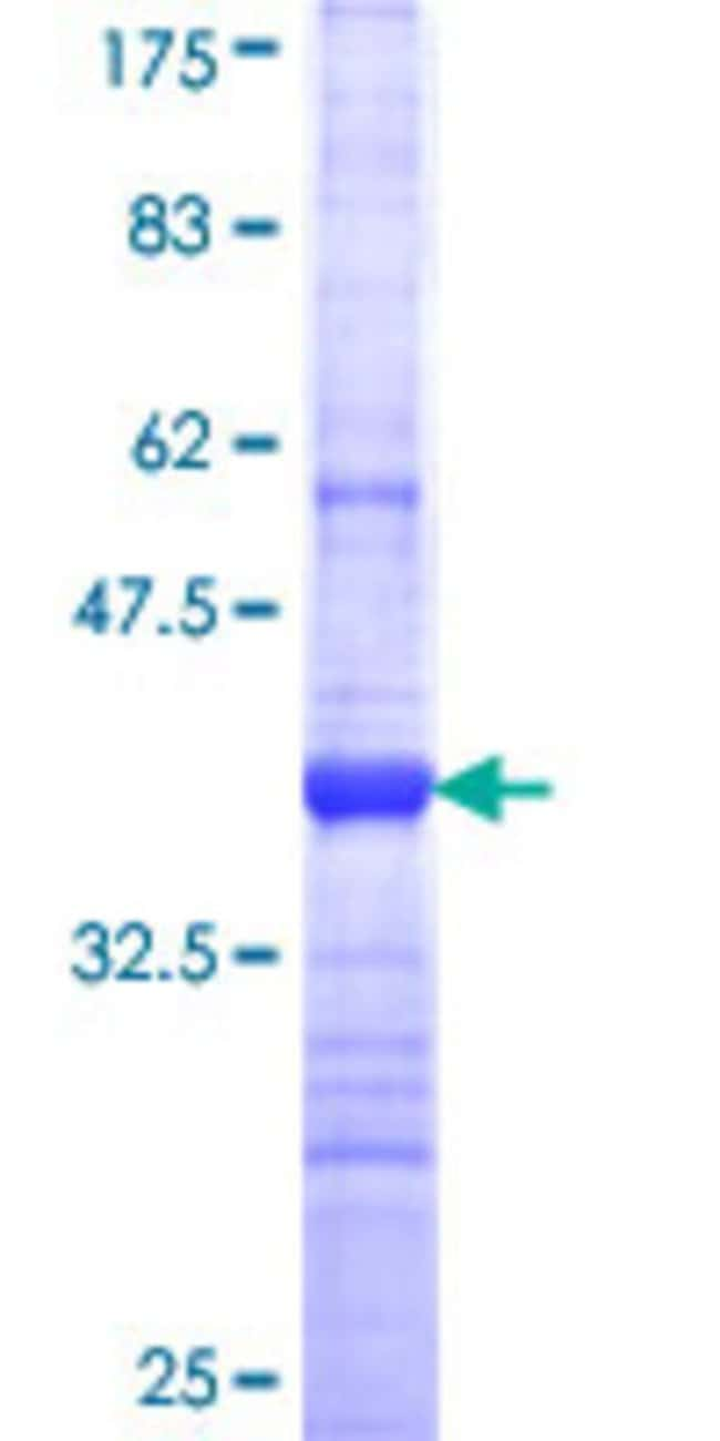 Abnova™Human PKHD1L1 Partial ORF (NP_803875, 4105 a.a. - 4186 a.a.) Recombinant Protein with GST-tag at N-terminal 25μg Abnova™Human PKHD1L1 Partial ORF (NP_803875, 4105 a.a. - 4186 a.a.) Recombinant Protein with GST-tag at N-terminal
