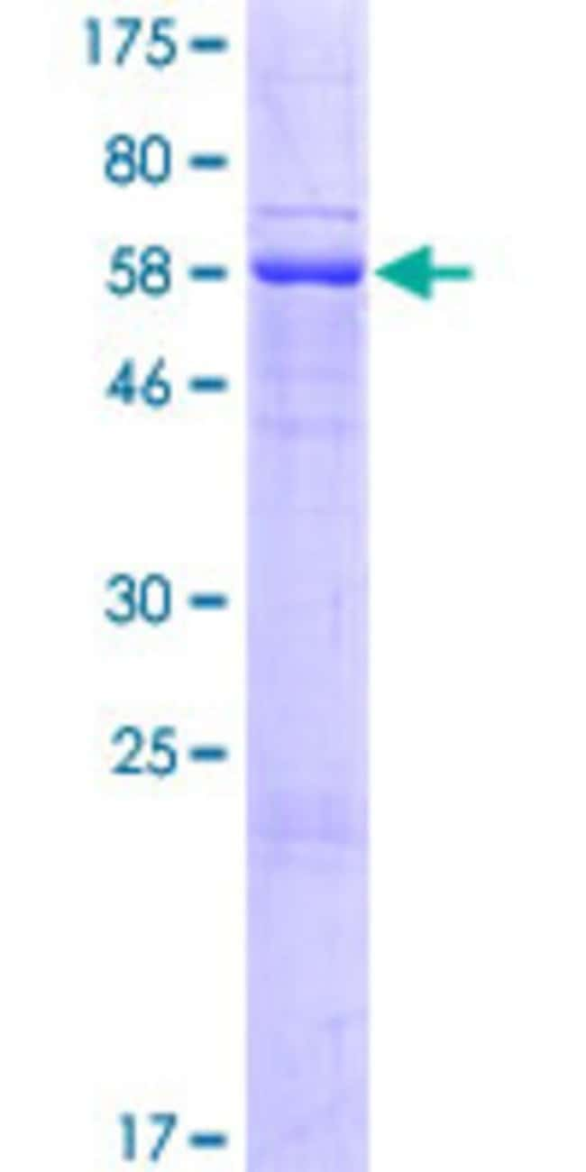 Abnova™Human HSPC105 Full-length ORF (NP_660151.1, 1 a.a. - 383 a.a.) Recombinant Protein with GST-tag at N-terminal 25μg Abnova™Human HSPC105 Full-length ORF (NP_660151.1, 1 a.a. - 383 a.a.) Recombinant Protein with GST-tag at N-terminal