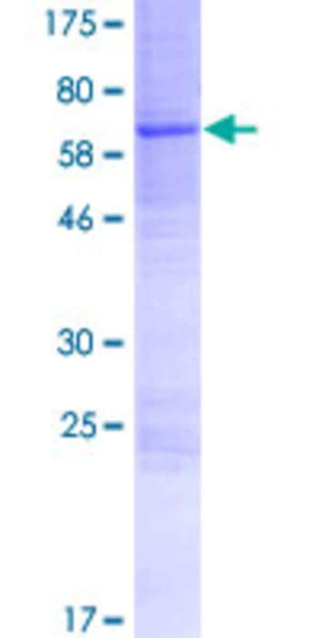 AbnovaHuman ACPT Full-length ORF (AAI46507.1, 1 a.a. - 426 a.a.) Recombinant