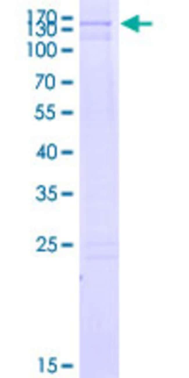 AbnovaHuman ACRC Full-length ORF (BAC05051.1, 1 a.a. - 691 a.a.) Recombinant