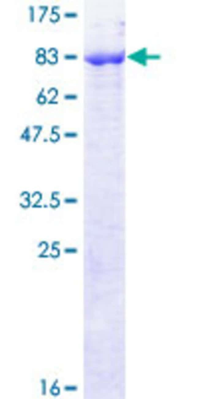 Abnova Human PIGS Full-length ORF (NP_149975.1, 1 a.a. - 555 a.a.) Recombinant