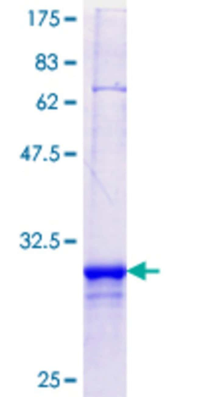 Abnova™Human PIGS Partial ORF (NP_149975.1, 450 a.a. - 518 a.a.) Recombinant Protein with GST-tag at N-terminal 25μg Abnova™Human PIGS Partial ORF (NP_149975.1, 450 a.a. - 518 a.a.) Recombinant Protein with GST-tag at N-terminal