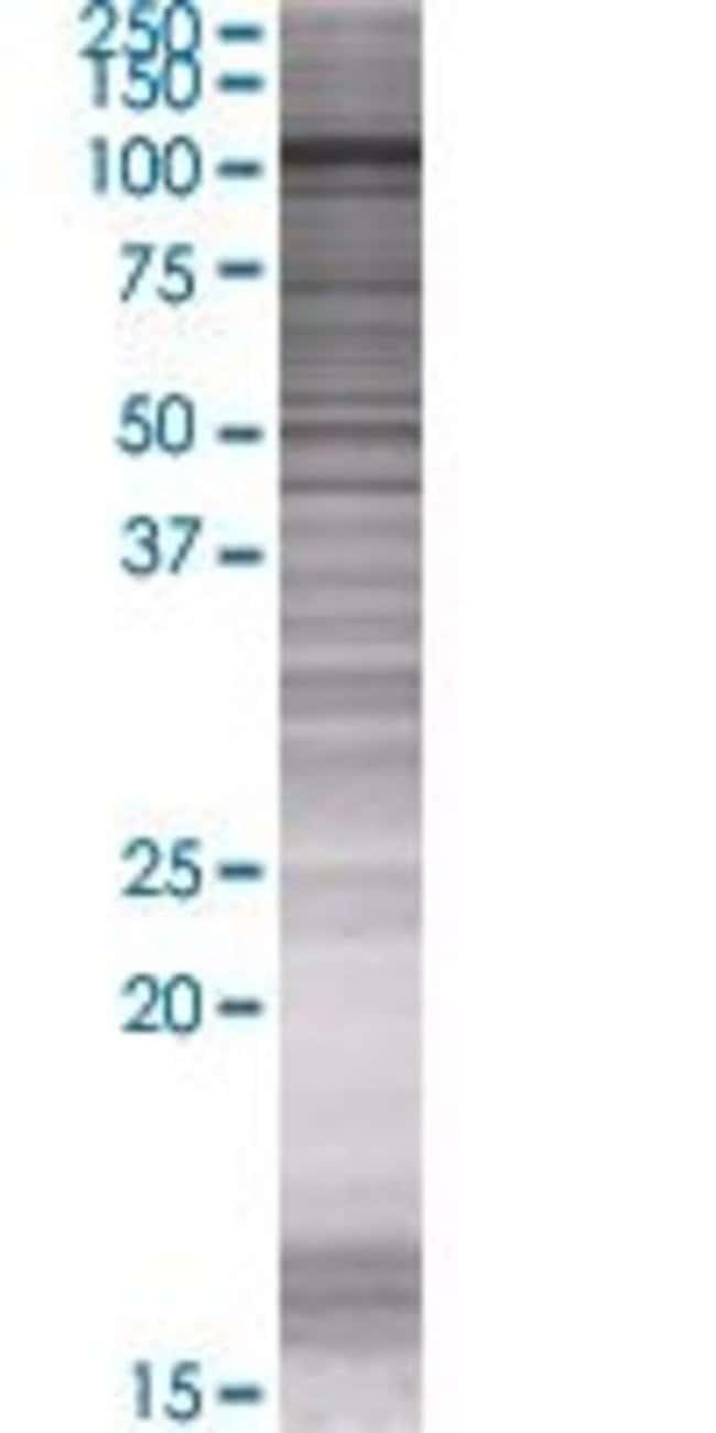 AbnovaARHGAP12 293T Cell Transient Overexpression Lysate (Denatured) 100μL:Protein