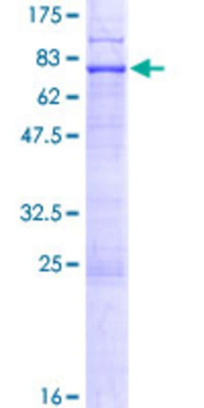 Abnova™Human EPSTI1 Full-length ORF (NP_001002264.1, 1 a.a. - 410 a.a.) Recombinant Protein with GST-tag at N-terminal 10μg Abnova™Human EPSTI1 Full-length ORF (NP_001002264.1, 1 a.a. - 410 a.a.) Recombinant Protein with GST-tag at N-terminal