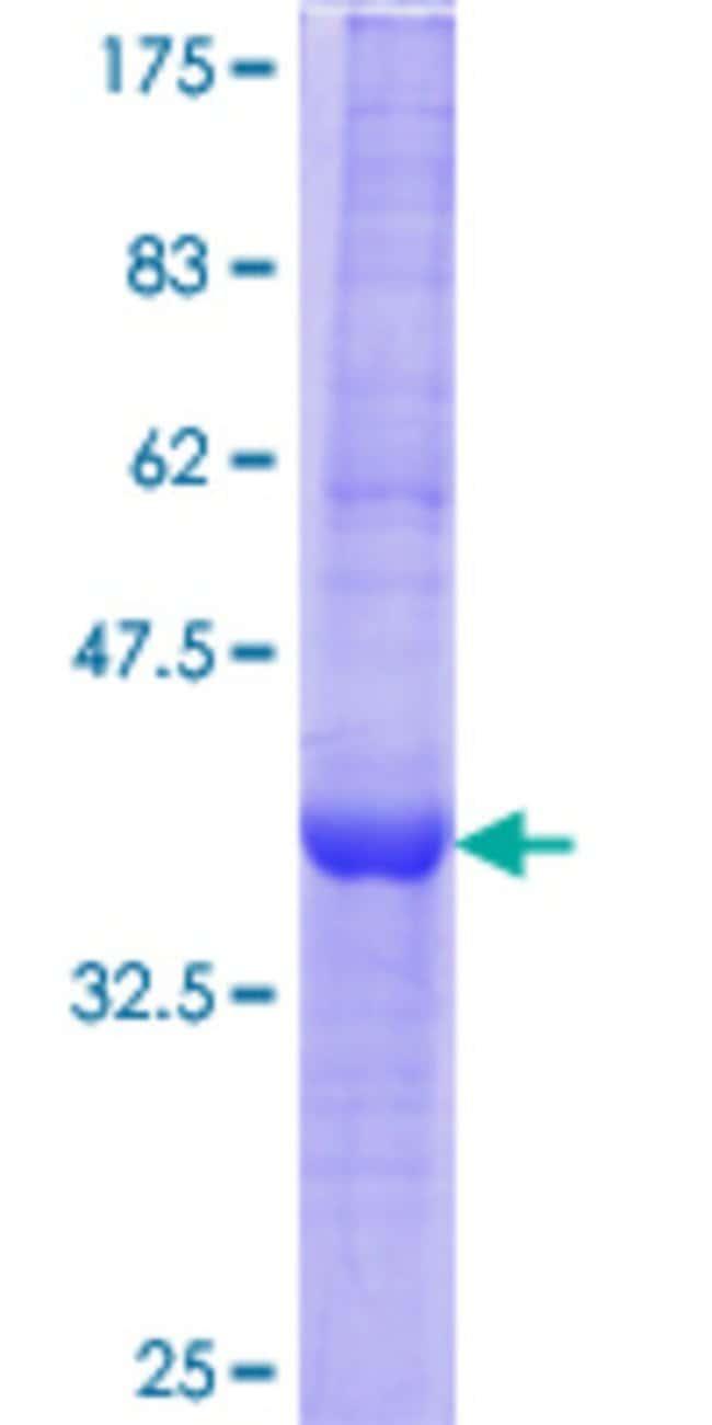 Abnova™Human EGLN3 Partial ORF (AAH10992.2, 94 a.a. - 193 a.a.) Recombinant Protein with GST-tag at N-terminal 10μg Abnova™Human EGLN3 Partial ORF (AAH10992.2, 94 a.a. - 193 a.a.) Recombinant Protein with GST-tag at N-terminal