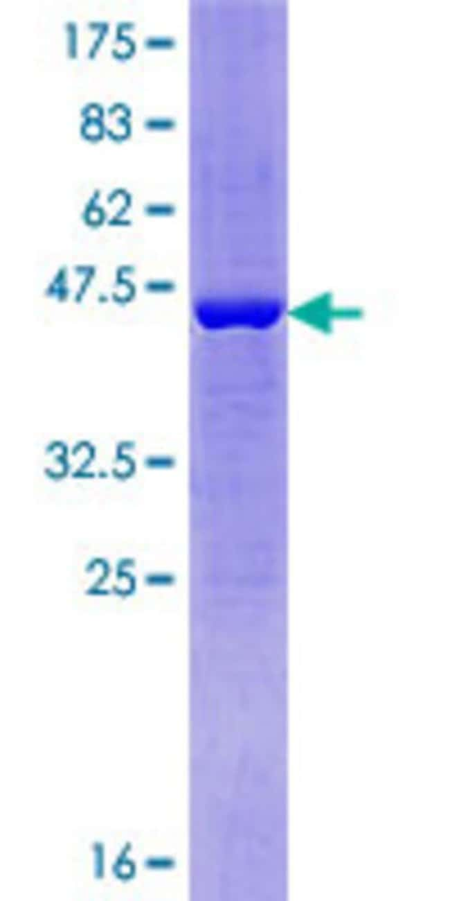 Abnova™Human C14orf126 Full-length ORF (NP_542395.1, 1 a.a. - 168 a.a.) Recombinant Protein with GST-tag at N-terminal 10μg Abnova™Human C14orf126 Full-length ORF (NP_542395.1, 1 a.a. - 168 a.a.) Recombinant Protein with GST-tag at N-terminal
