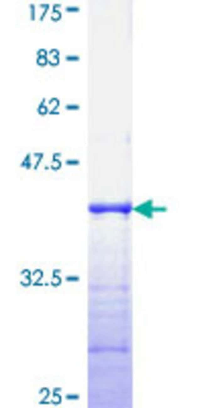 Abnova™Human TP53RK Partial ORF (AAH09727, 154 a.a. - 253 a.a.) Recombinant Protein with GST-tag at N-terminal 10μg Abnova™Human TP53RK Partial ORF (AAH09727, 154 a.a. - 253 a.a.) Recombinant Protein with GST-tag at N-terminal