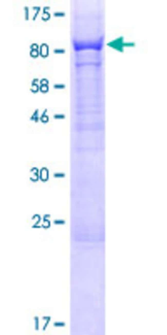 Abnova™Human PHF21B Full-length ORF (NP_612424.1, 1 a.a. - 531 a.a.) Recombinant Protein with GST-tag at N-terminal 10μg Abnova™Human PHF21B Full-length ORF (NP_612424.1, 1 a.a. - 531 a.a.) Recombinant Protein with GST-tag at N-terminal