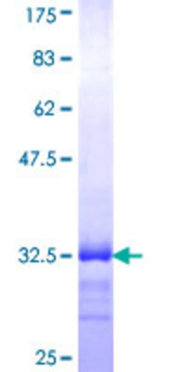 Abnova Human MED8 Partial ORF (NP_443109, 1 a.a. - 59 a.a.) Recombinant
