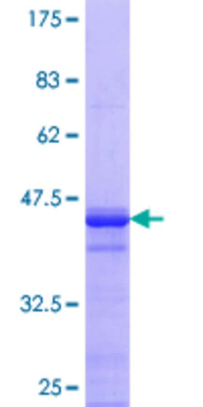 Abnova™Human AHNAK2 Partial ORF (XP_290629.5, 5527 a.a. - 5636 a.a.) Recombinant Protein with GST-tag at N-terminal 25μg Abnova™Human AHNAK2 Partial ORF (XP_290629.5, 5527 a.a. - 5636 a.a.) Recombinant Protein with GST-tag at N-terminal