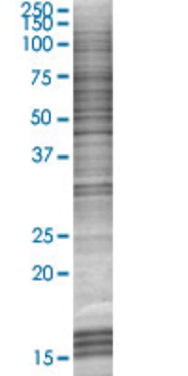 AbnovaAHNAK2 293T Cell Transient Overexpression Lysate (Denatured) (T03)