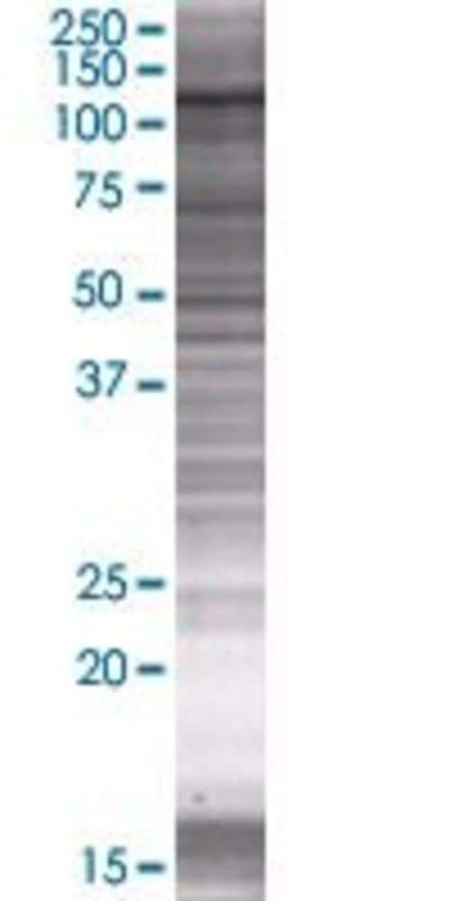 Abnova LARP4 293T Cell Transient Overexpression Lysate (Denatured) (T01)