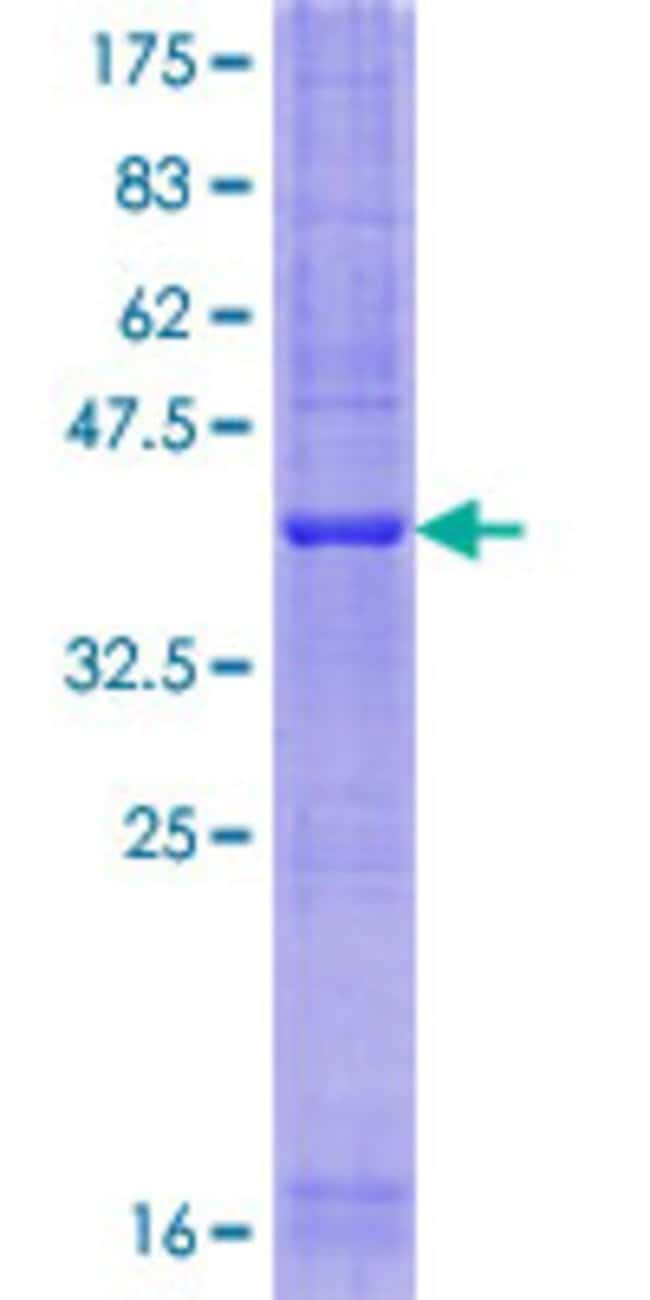 Abnova™Human SFT2D1 Full-length ORF (NP_660152.1, 1 a.a. - 159 a.a.) Recombinant Protein with GST-tag at N-terminal 25μg Abnova™Human SFT2D1 Full-length ORF (NP_660152.1, 1 a.a. - 159 a.a.) Recombinant Protein with GST-tag at N-terminal