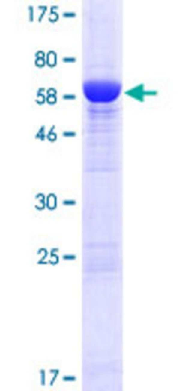 AbnovaHuman ADPRHL1 Full-length ORF (NP_612439.2, 1 a.a. - 354 a.a.) Recombinant