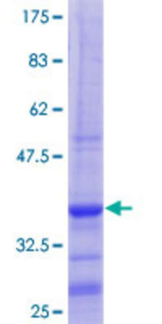 Abnova™Human WBSCR22 Partial ORF (NP_059998.2, 1 a.a. - 110 a.a.) Recombinant Protein with GST-tag at N-terminal 25μg Abnova™Human WBSCR22 Partial ORF (NP_059998.2, 1 a.a. - 110 a.a.) Recombinant Protein with GST-tag at N-terminal