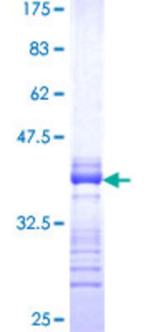 Abnova Human LMTK3 Partial ORF (XP_055866, 1151 a.a. - 1250 a.a.) Recombinant