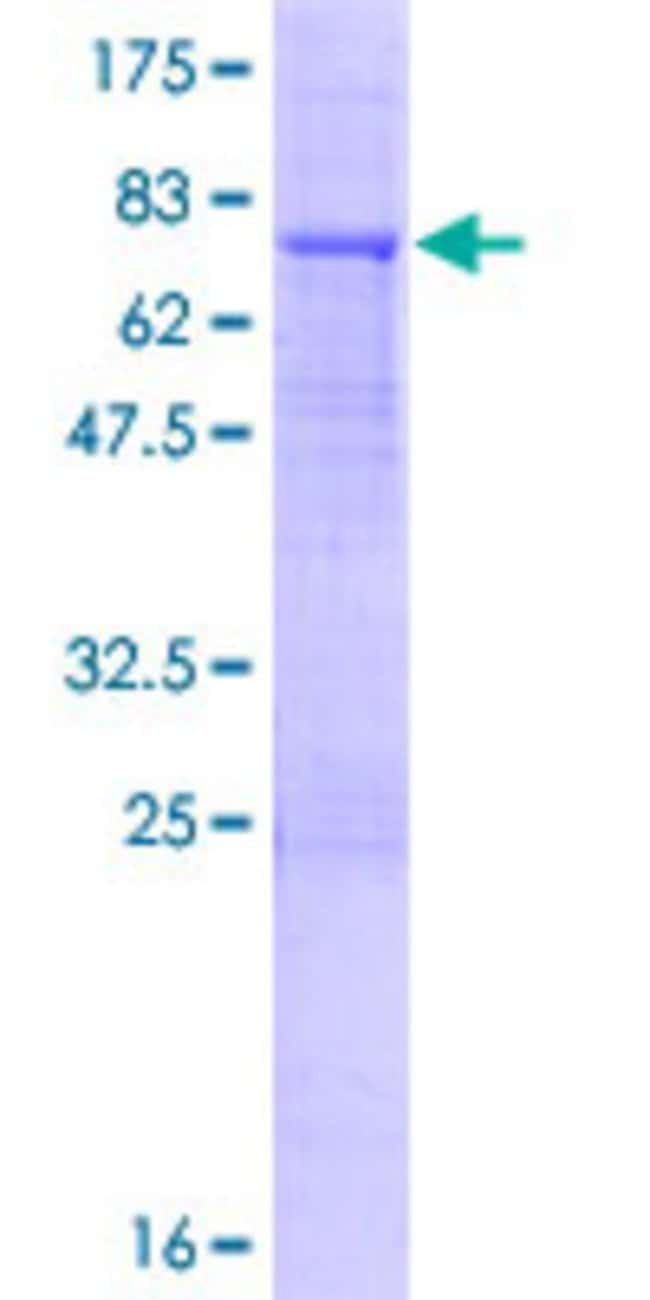 Abnova™Human KLHL32 Full-length ORF (AAH71627.1, 1 a.a. - 470 a.a.) Recombinant Protein with GST-tag at N-terminal 10μg Abnova™Human KLHL32 Full-length ORF (AAH71627.1, 1 a.a. - 470 a.a.) Recombinant Protein with GST-tag at N-terminal