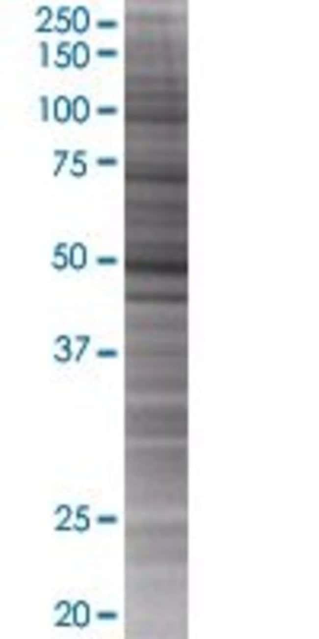 Abnova KIAA1900 293T Cell Transient Overexpression Lysate (Denatured) 100µL:Life