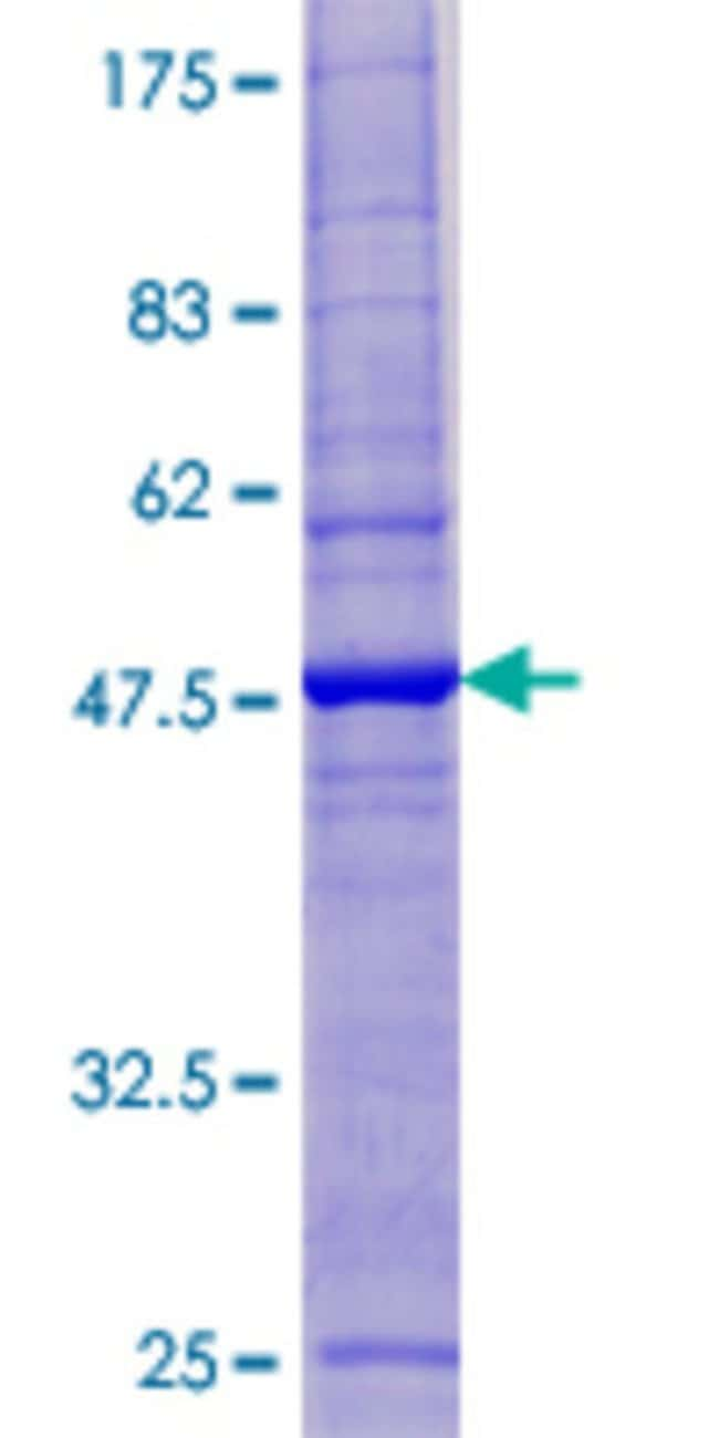 Abnova™Human ESCO1 Full-length ORF (AAH36943.1, 1 a.a. - 172 a.a.) Recombinant Protein with GST-tag at N-terminal 10μg Abnova™Human ESCO1 Full-length ORF (AAH36943.1, 1 a.a. - 172 a.a.) Recombinant Protein with GST-tag at N-terminal