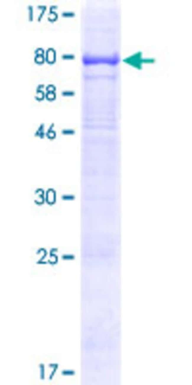 Abnova™Human TMEM200A Full-length ORF (NP_443145.1, 1 a.a. - 491 a.a.) Recombinant Protein with GST-tag at N-terminal 25μg Abnova™Human TMEM200A Full-length ORF (NP_443145.1, 1 a.a. - 491 a.a.) Recombinant Protein with GST-tag at N-terminal