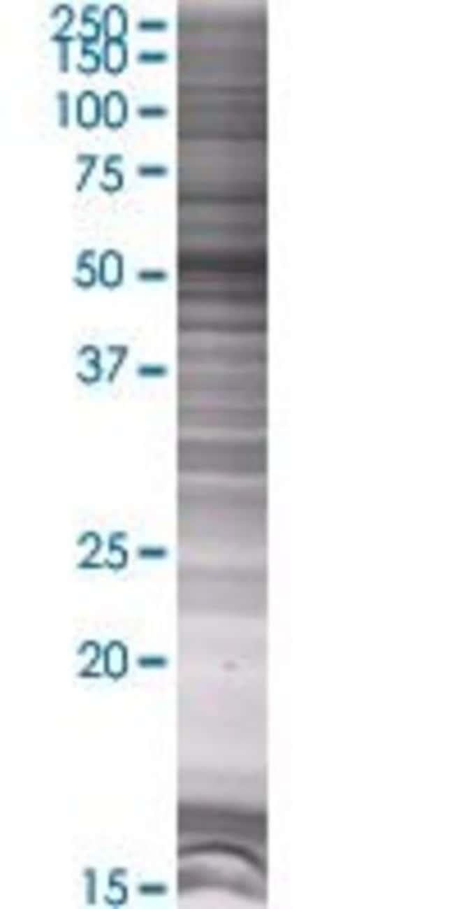 Abnova KBTBD9 293T Cell Transient Overexpression Lysate (Denatured) (T01)