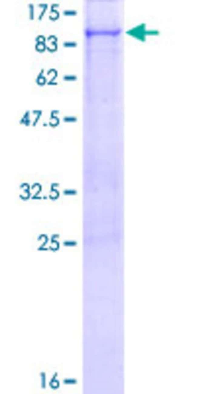 Abnova™Human RHPN1 Full-length ORF (NP_443156.2, 1 a.a. - 670 a.a.) Recombinant Protein with GST-tag at N-terminal 10μg Abnova™Human RHPN1 Full-length ORF (NP_443156.2, 1 a.a. - 670 a.a.) Recombinant Protein with GST-tag at N-terminal