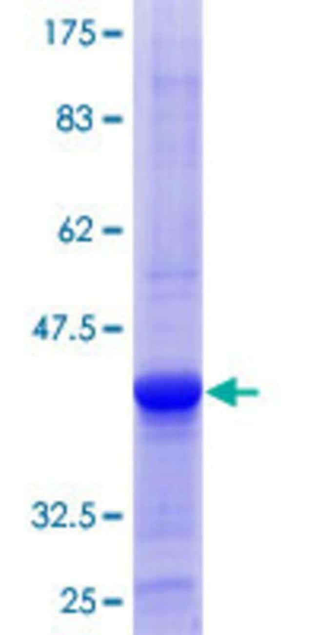 Abnova™Human OSBPL6 Partial ORF (NP_665682.1, 344 a.a. - 443 a.a.) Recombinant Protein with GST-tag at N-terminal 10μg Abnova™Human OSBPL6 Partial ORF (NP_665682.1, 344 a.a. - 443 a.a.) Recombinant Protein with GST-tag at N-terminal