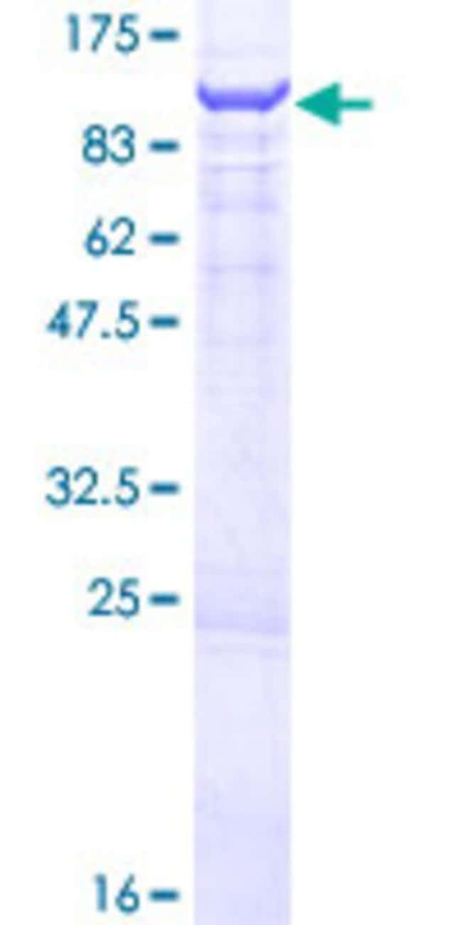 Abnova™Human OSBPL9 Full-length ORF (NP_683702.1, 1 a.a. - 558 a.a.) Recombinant Protein with GST-tag at N-terminal 10μg Abnova™Human OSBPL9 Full-length ORF (NP_683702.1, 1 a.a. - 558 a.a.) Recombinant Protein with GST-tag at N-terminal